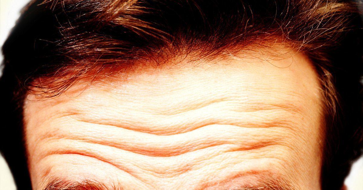 額頭有很深皺紋的人,死於心血管疾病的風險高(示意圖)。取自網路