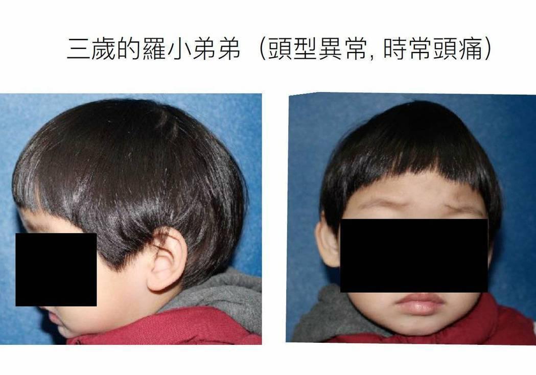 羅小弟弟從小頭型正面像洋蔥,側面較長,像是恐龍,三歲才被確診為「顱縫早閉症」。圖...