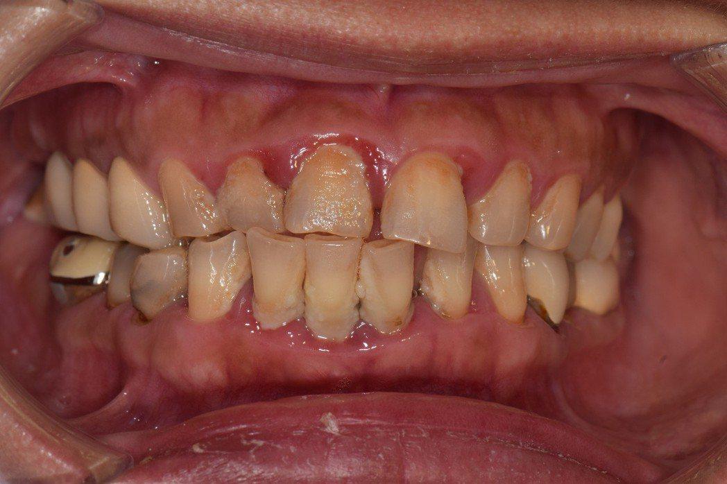 不要輕忽無聲無息的牙菌斑或牙結石!牙周病初期可能僅牙齦些許紅腫,一旦口腔衛生持續...