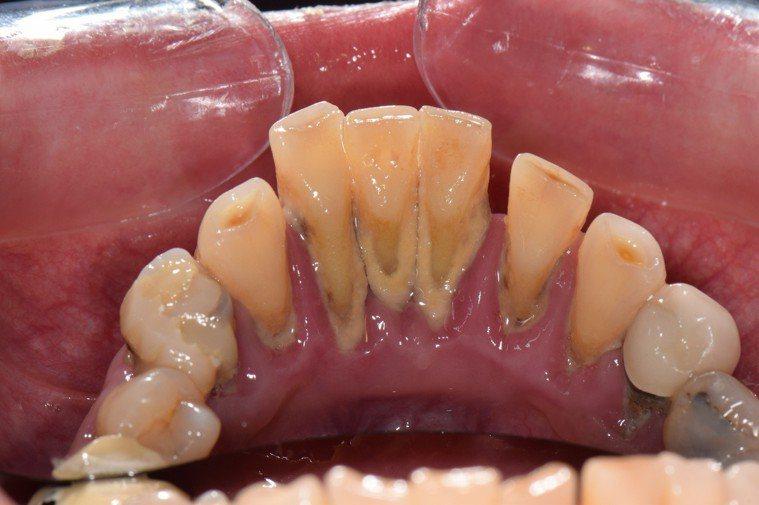 圖中為典型之牙周病情形,若出現下列症狀或徵兆,代表可能是牙周病的警訊!
