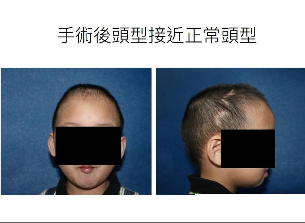 林口長庚將3D列印技術應用在「顱縫早閉症」病童的矯正手術,重新拼拼湊羅小弟弟頭蓋...