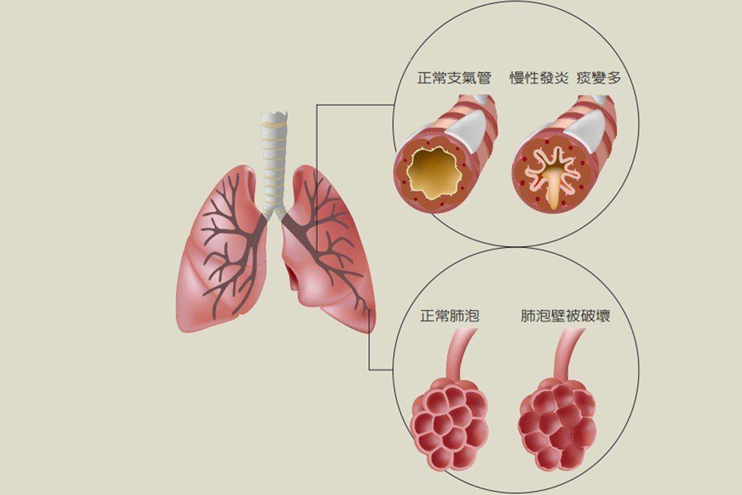 肺阻塞是一種持續性且不可逆的呼吸道阻塞疾病,初期症狀為慢性咳嗽、咳痰、呼吸不順暢...