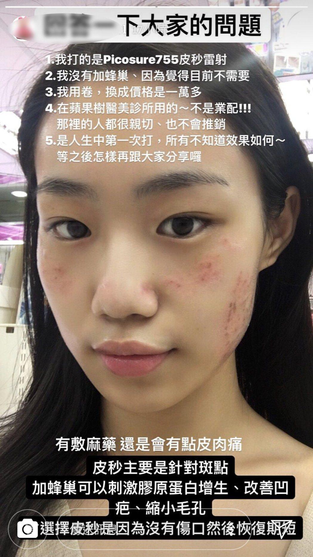 鹿希派女友水兒最近臉部去除胎記進行雷射。 擷自/IG