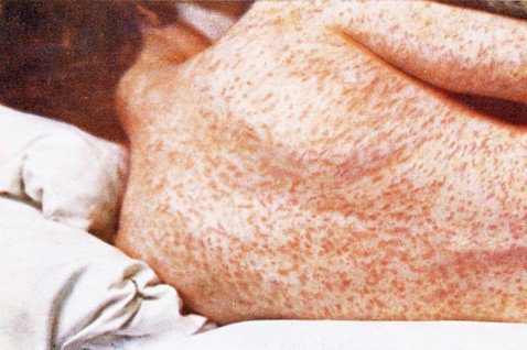一旦感染,在經過潛伏期後,患者會出現類似感冒的發燒、咳嗽...等症狀,口腔內出現...