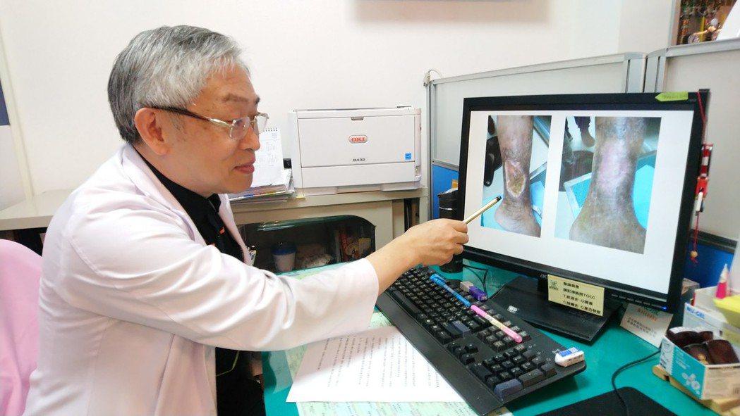豐原醫院心臟血管外科主任張耀中表示,劉婦因靜脈潰瘍致傷口5年無法痊癒。記者余采瀅...