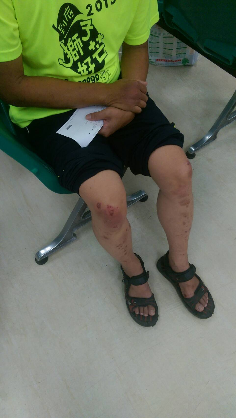 潘男也因扭打過程中,頭部及身體也多處挫傷,左側肋骨也閉鎖性骨折。記者尤聰光/攝影