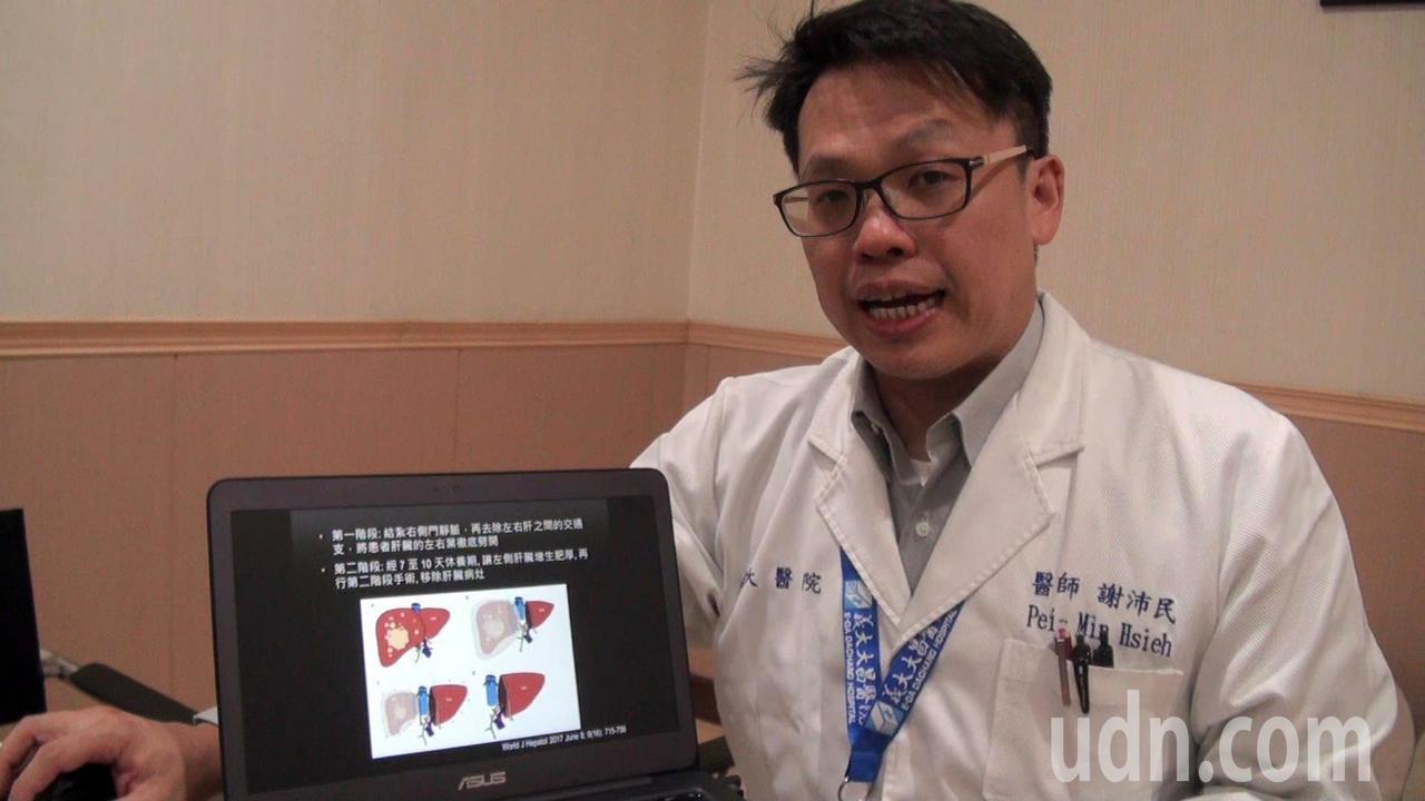 高雄義大大昌醫院一般外科主任謝沛民表示,巨大肝癌的切除,易因剩餘肝臟容積不足,引...