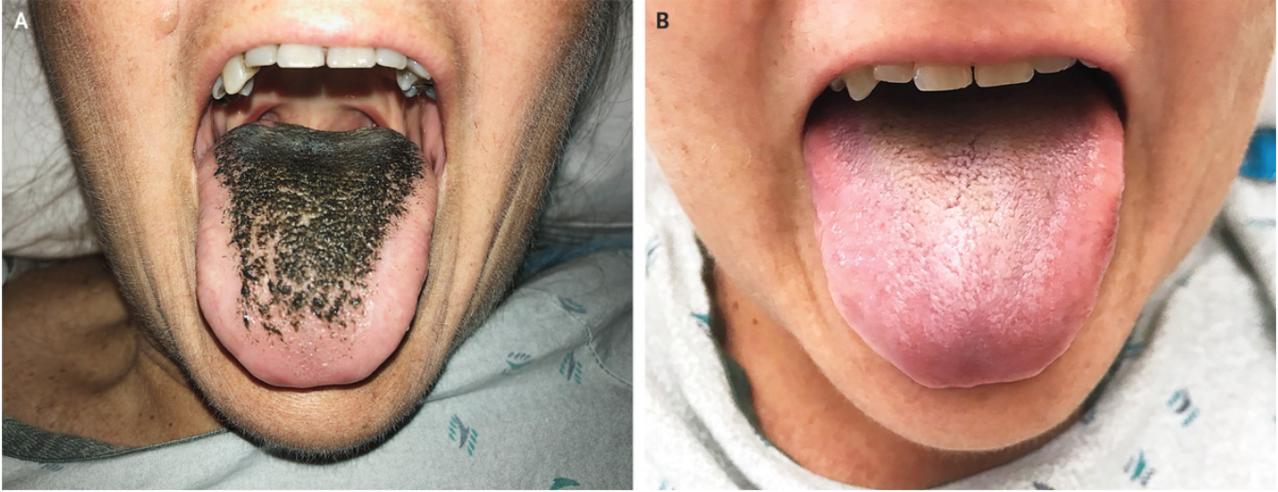 美國一名婦人因服用抗生素,引發「黑毛症」。圖/取自《新英格蘭醫學雜誌網站》