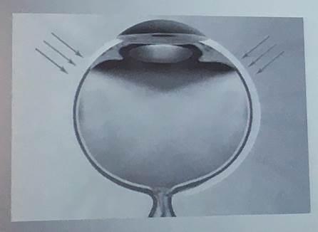 圖2:Resight計畫以光線穿過鞏膜的技術取代現行,減少透過瞳孔觀察視網膜的風...