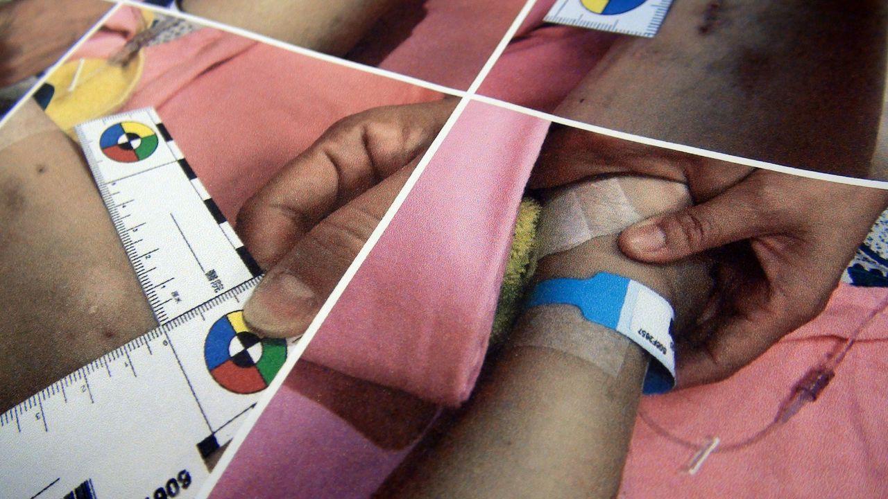 被虐的幼兒,傷勢令醫護人員不忍卒賭。記者王昭月/攝影
