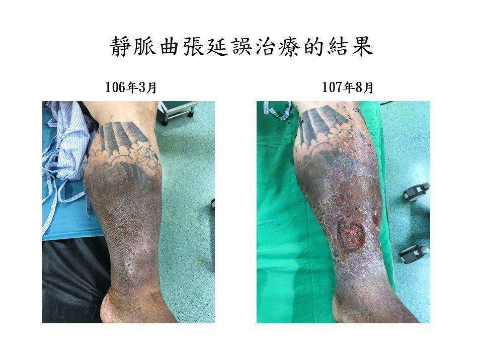 屏東東港一名40歲體重破百的男性廚師雙腿都有靜脈曲張情況,去年右腿嚴重出血接受治...
