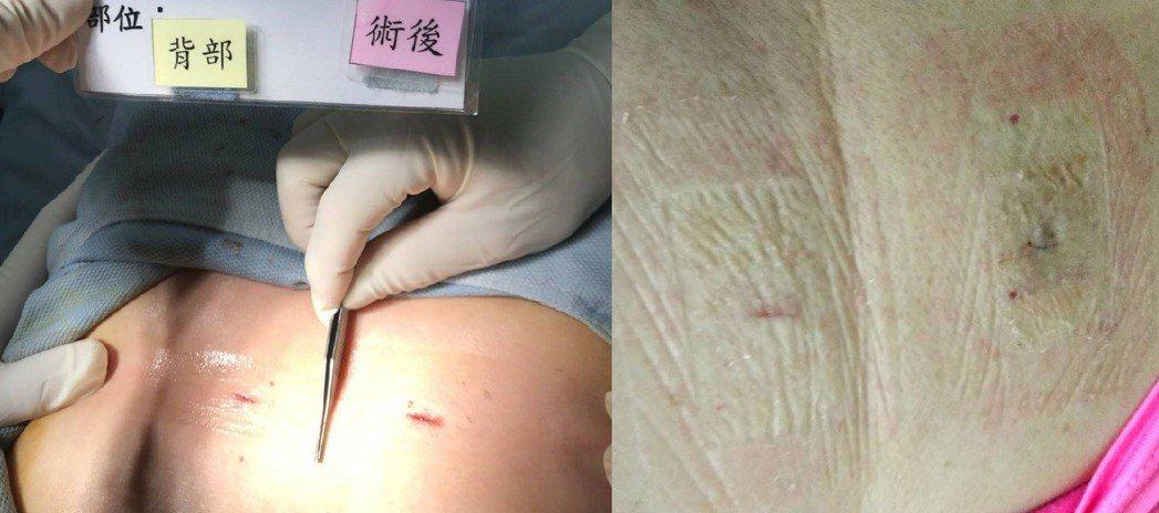 手術傷口照護有妙招,手術當天的傷口(圖左)及使用傷口三秒膠17天後的傷口(圖右)...
