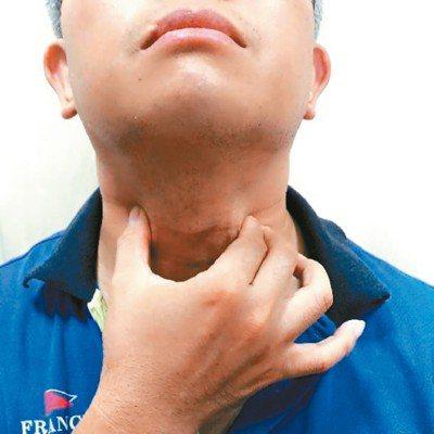 喉嚨不舒服,王耀賢建議除了飲食保養外,還可按摩脖子前端兩側穴道,頸部肌肉放鬆,將...