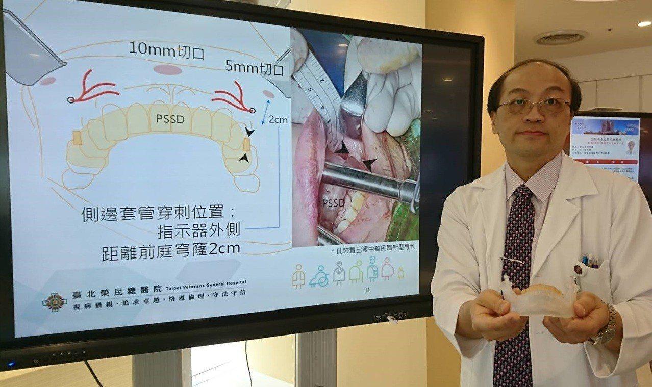 台北榮總外科部一般外科主治醫師陳瑞裕手拿病患的牙套模型,模型上有小小頦神經孔的標...