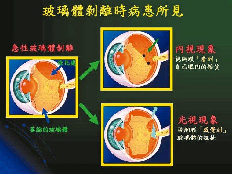玻璃體剝離時病患所見內視現象視網膜看到自己眼內的「雜質」,病患可能看到幾...