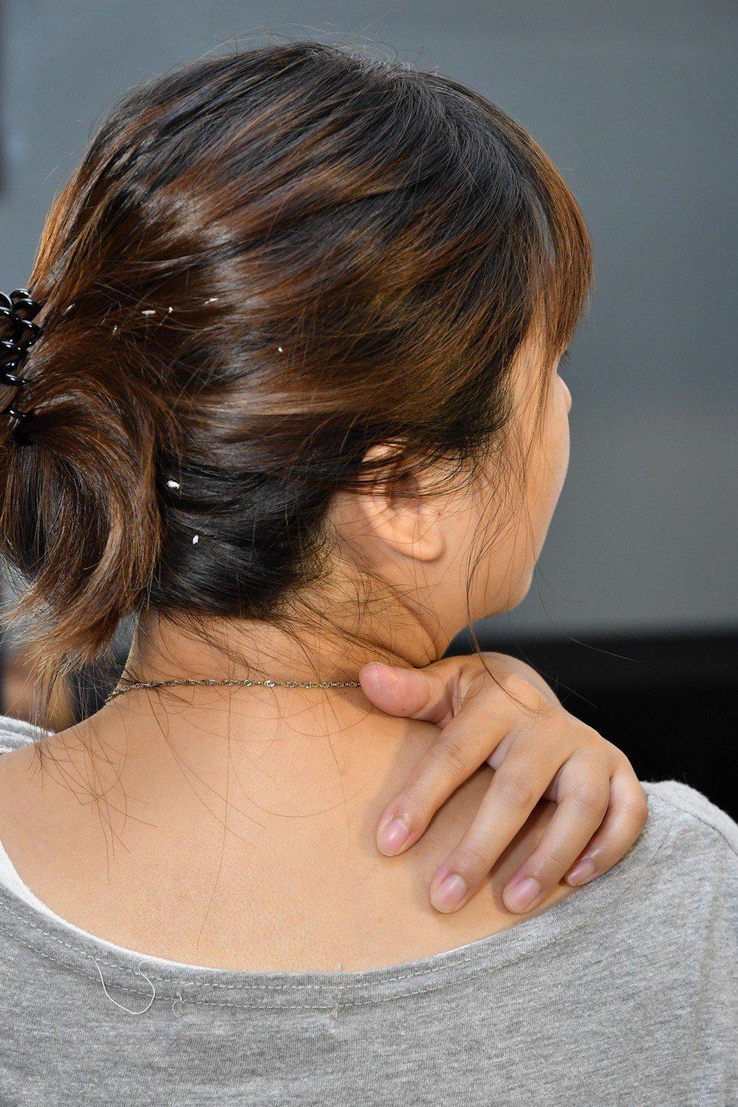 臨床顯示,近八成乾癬患者有嚴重頭皮屑問題,雖不會傳染,但擔心旁人異樣眼光,而不敢...