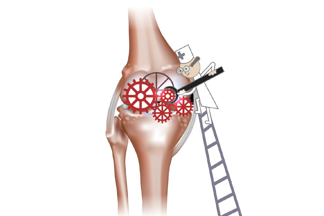 體重過重,正是膝蓋過度負荷的第一要因。 圖/123RF