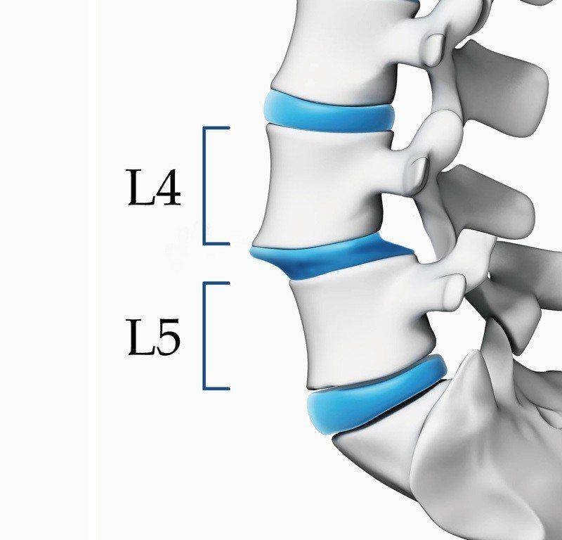 上圖為位於腰椎第四節與第五節之椎體滑脫病灶,程度介於第一級與第二級之間。 圖...