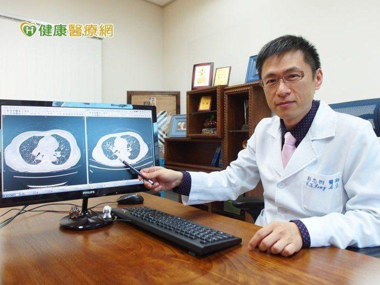 彭忠衎主任說明免疫療法就是喚醒自身免疫系統T細胞上的「PD-1免疫檢查點」的免疫...