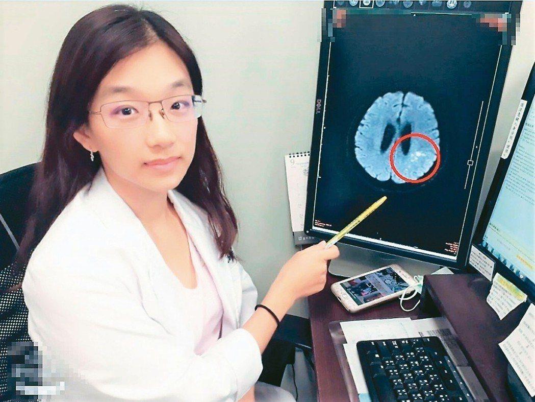 台中市長安醫院神經內科醫師陳惠萱提醒,突然發生的記憶、語言、理解和聽說讀寫等問題...