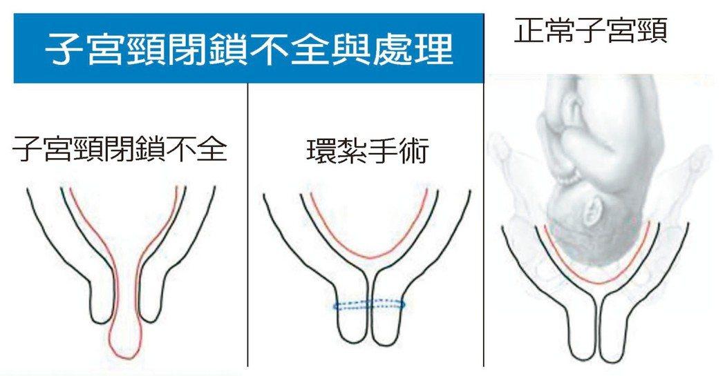 子宮頸閉鎖不全嚴重時,羊膜由打開的子宮頸膨出至陰道,經子宮頸環紮手術,胎兒存活率...