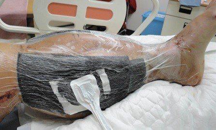 病人因左小腿血液回流不良衍生腔室症候群,手術減壓後仍需觀察。圖/桃園市怡仁醫院提...