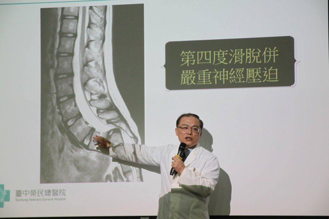 台中榮總骨科部主任李政鴻說,洪姓少女的腰椎銜接薦椎處幾乎完全脫位,以往這類手術植...