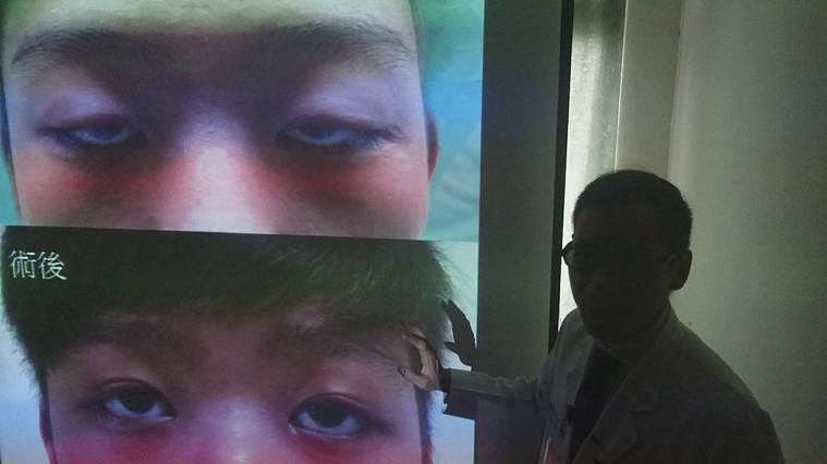 宜蘭一名青年出生即因眼瞼下垂,眼睛睜不開,20年來,有如半夢半醒,臺北榮總蘇澳暨...