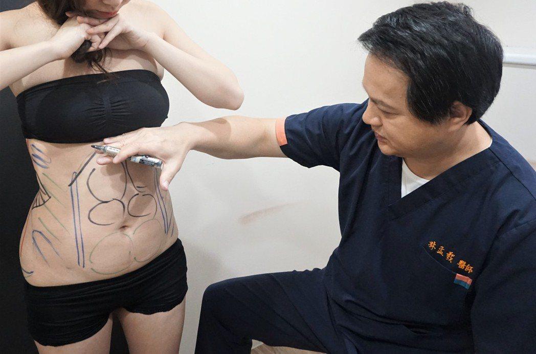 林孟羲醫師(右)表示,抽脂不代表減肥,產後若想透過抽脂塑身,應該先從飲食、運動控...