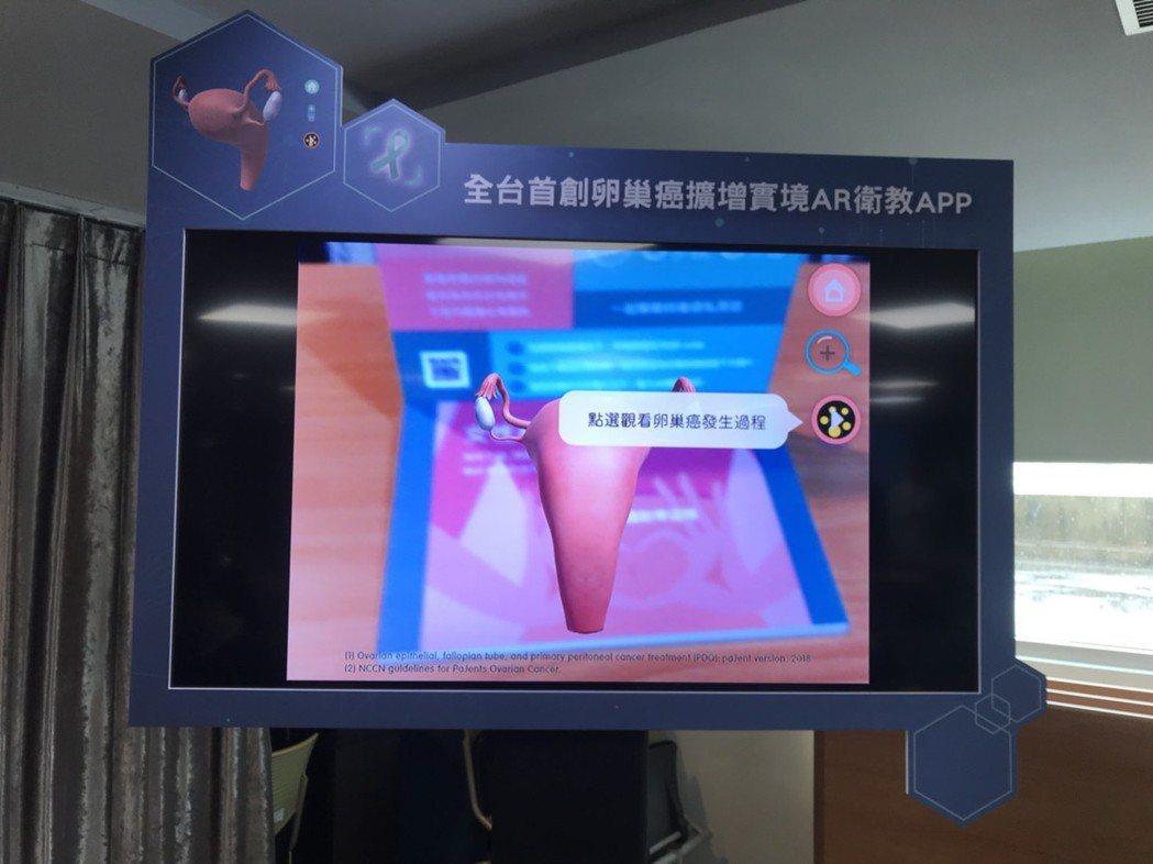 「卵巢癌擴增實境APP」11月起可在手機程式平台下載,對想自我檢查的女性同胞來說...