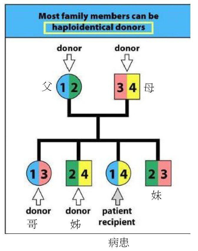 半相合造血幹細胞移植技術,讓患者與父母捐贈者的造血幹細胞配對「不盡完美」,也能順...