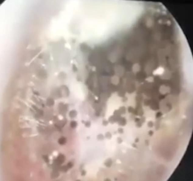 一名男子耳朵又痛又癢,而去醫院求診,沒想到醫生竟在他耳道內發現一片「蘑菇樹林」。...
