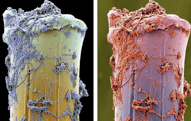 牙齒被放在顯微鏡下觀察,活像外星球表面或海底生物。圖取自每日郵報