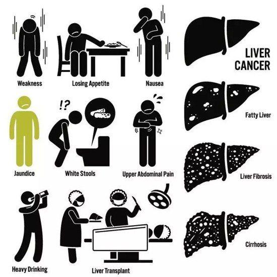 肝癌會出現的症狀。
