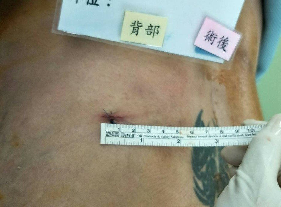 楊椒喬表示,新式脊椎內視鏡神經減壓手術可快速移除突出椎間盤,且傷口小於1公分,組...