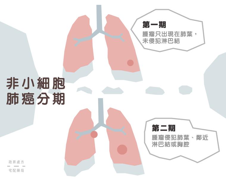 第一期與第二期肺癌的變化。