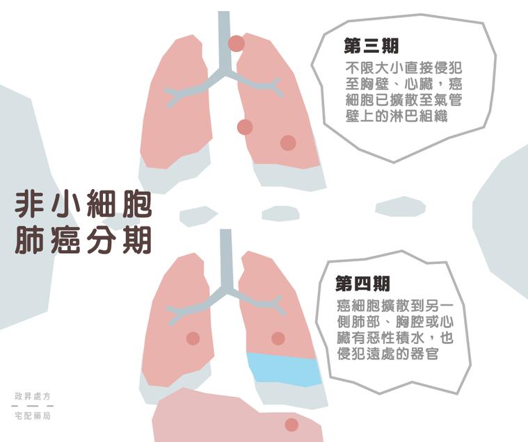 第三期與第四期肺癌的變化。