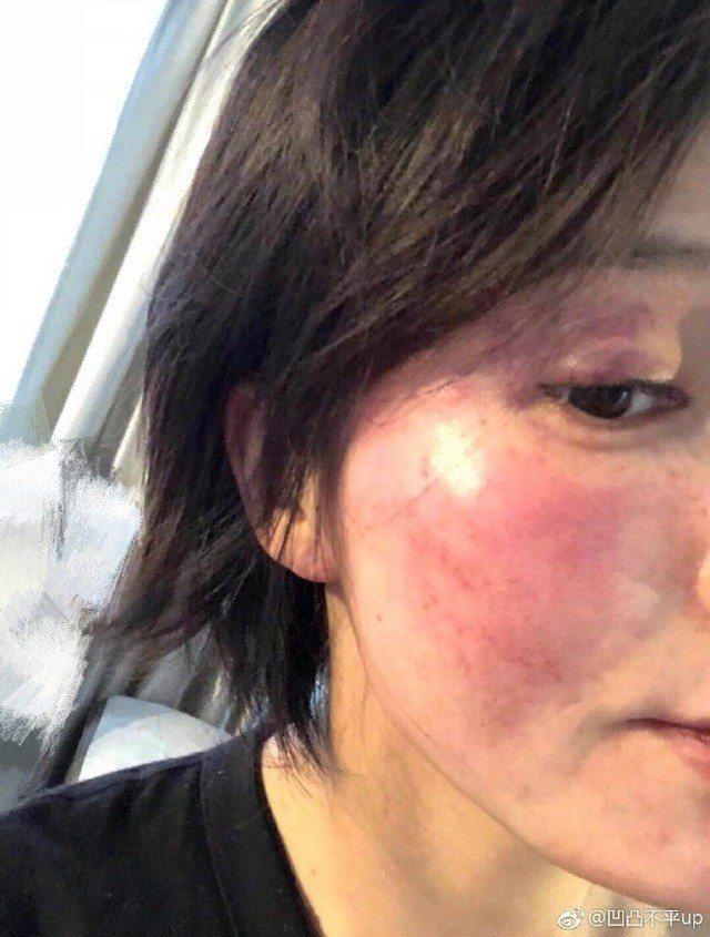 王雨馨臉紅腫。圖/摘自微博