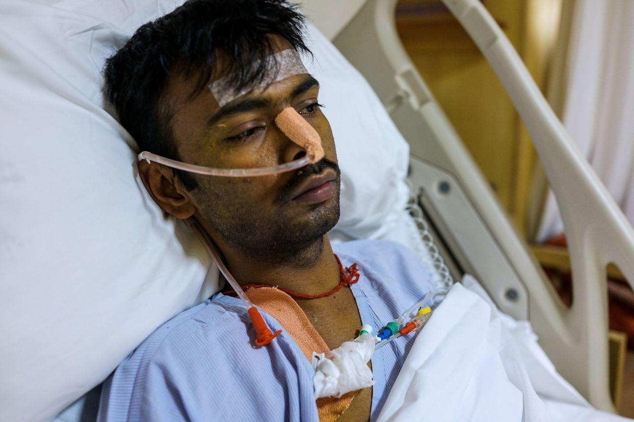 29歲的庫瑪剛動完切除一邊肺臟的手術。法新社