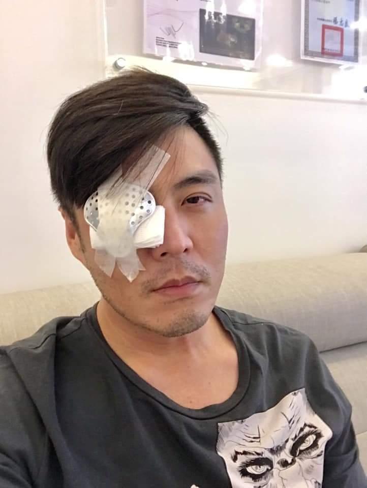 劉至翰先前才動青光眼手術。圖/摘自臉書