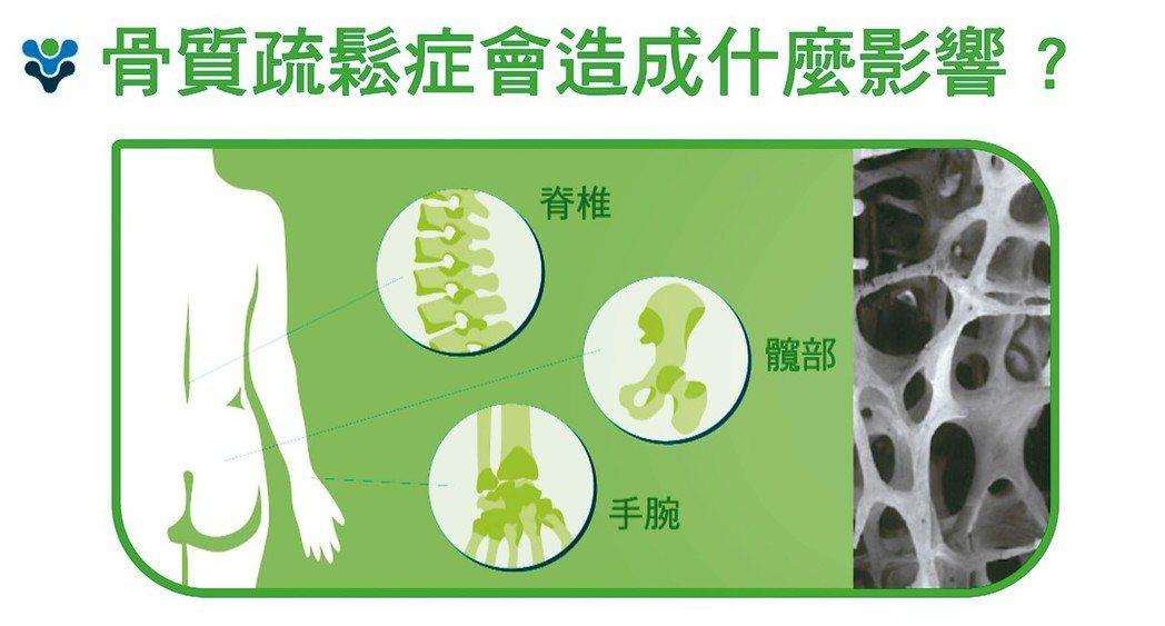 骨質疏鬆症會造成什麼影響? 骨質疏鬆骨折常發發生部位為脊椎體、髖部或腕部。 圖/...