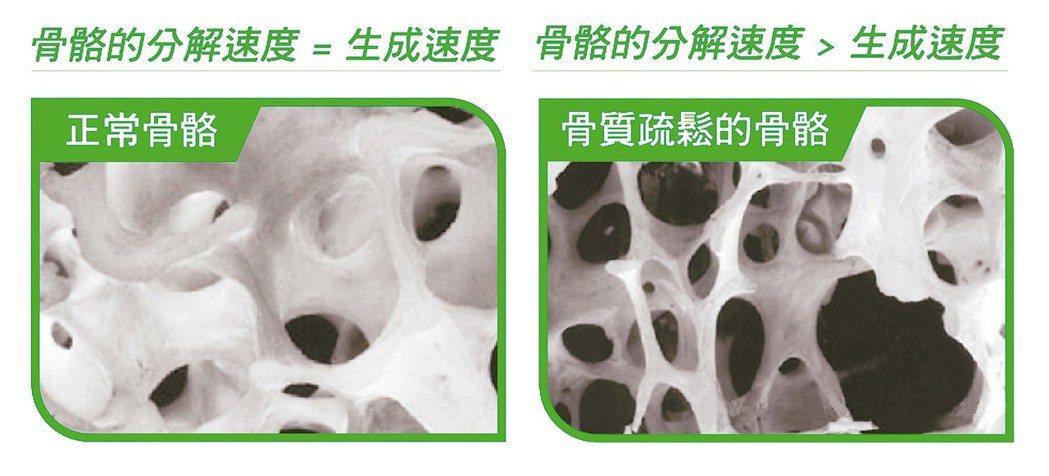 骨質疏鬆症會造成什麼影響? 正常骨骼的分解速度等於生成速度,骨骼的分解速度大於生...