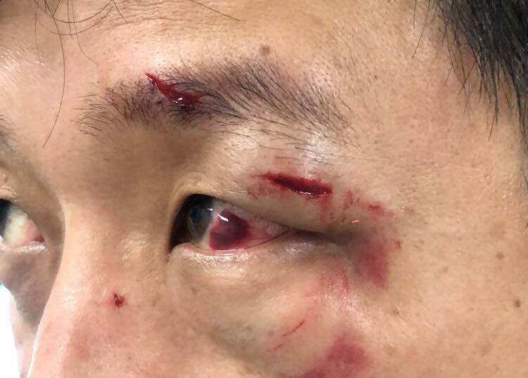 網友Tony Tuan的友人遊花蓮時,遭競選宣傳車駕駛毆打,左眼被打到紅腫,眼球...