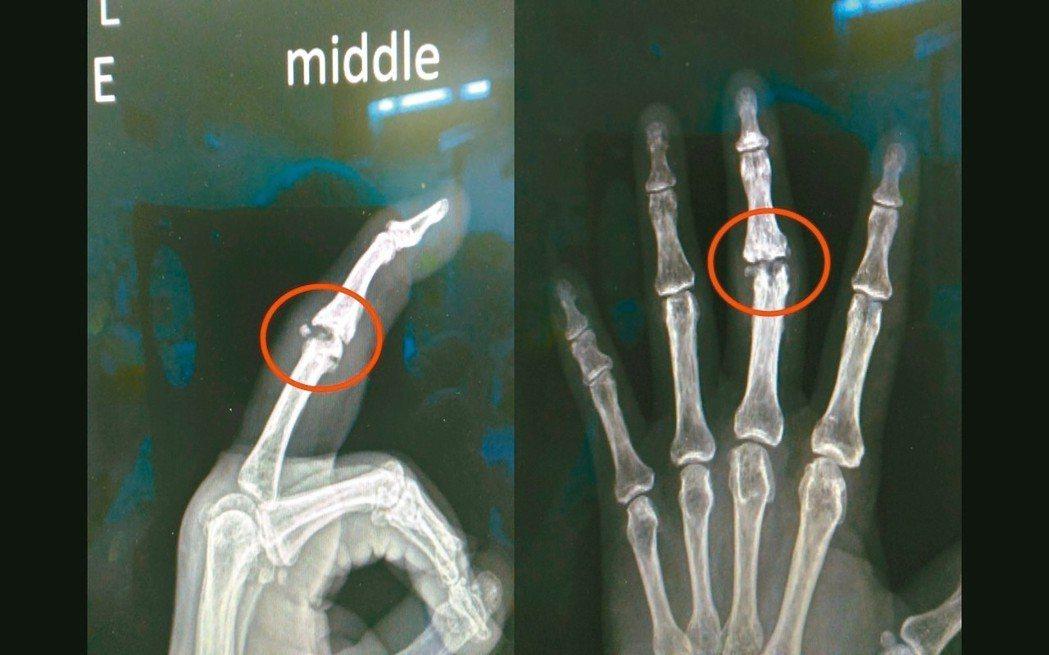 從X光片可以看到手指近端指關節退化。 圖/彰濱秀傳醫院提供