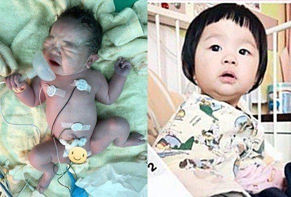 去年10月底,患有罕見的複雜先天心臟病的女嬰出生沒多久,主動用力握住氧氣罩,展現...
