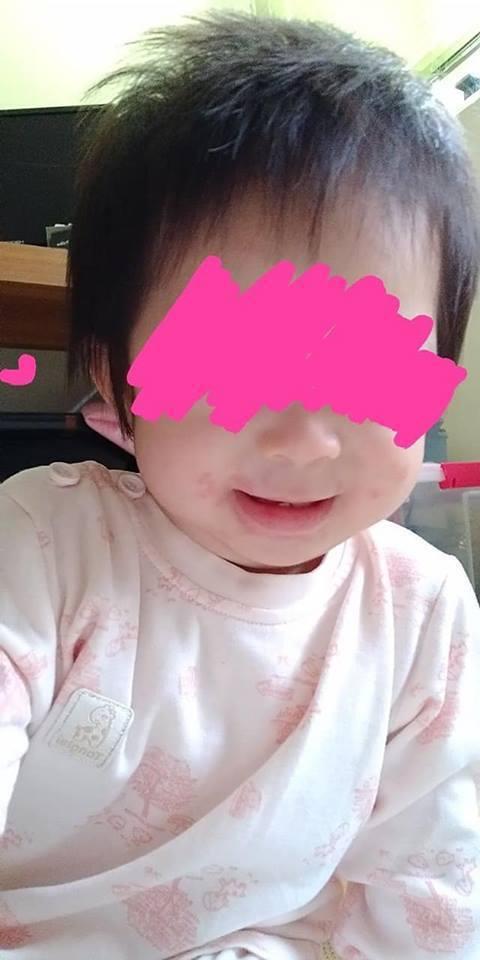 1歲女童感染皰疹後逐漸康復,但臉上仍留有皰疹紅痕。 圖/取自爆怨公社