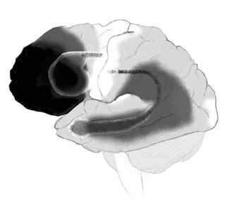 腦部容易受到老化影響的區域。顏色越深的區域,代表越容易受到自然老化的影響。 圖/...