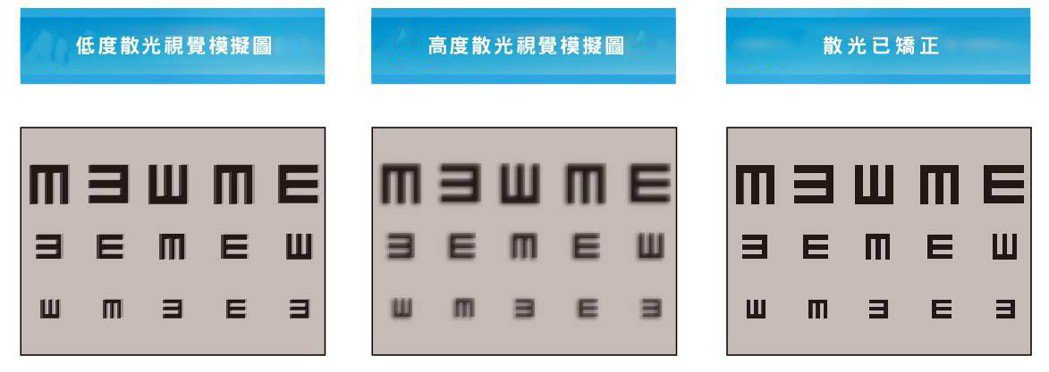 別輕忽散光對於視力的影響,不少白內障患者術後視力仍不好,原因就出在散光。提供/賴...