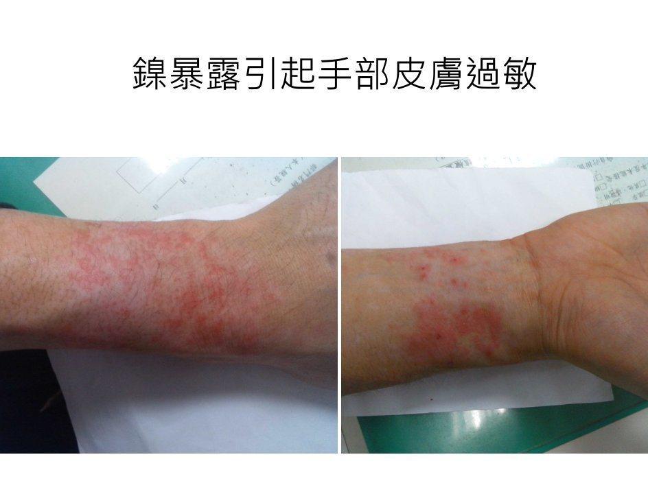 鎳暴露可能引起手部皮膚過敏。 圖/長庚醫院提供