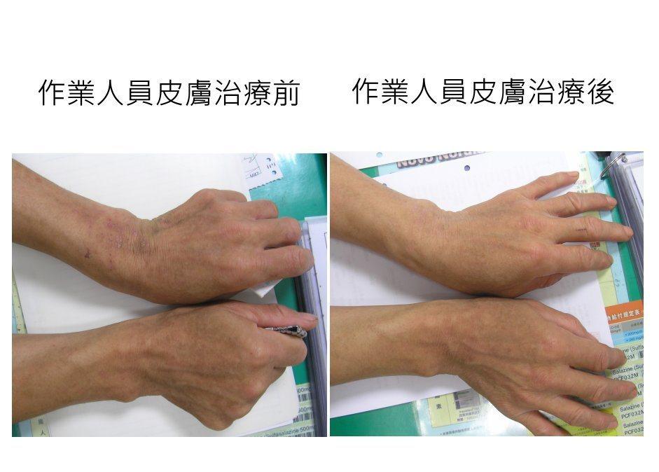 鎳暴露電鍍員的皮膚治療前(左)後(右)對照圖。 圖/長庚醫院提供